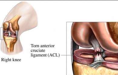 ACL surgeon Los Angeles