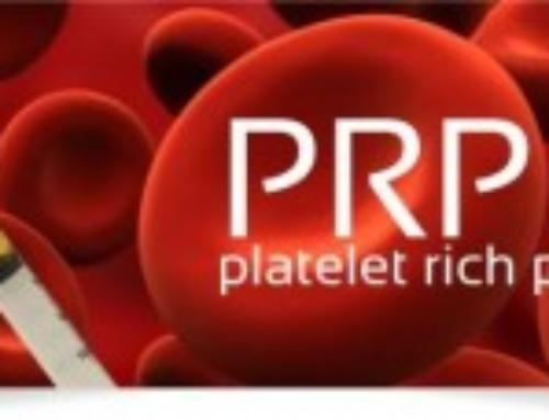 FAQs on Platelet Rich Plasma Therapy from a Beverly Hills Orthopedic