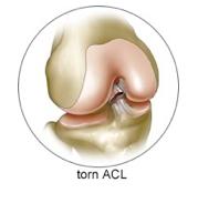ACL-Tear2