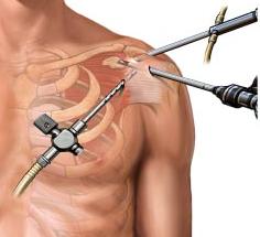 Orthopedic Surgeons Los Angeles