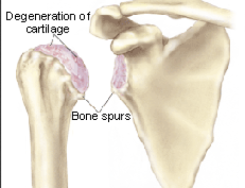 Study Reviews Outcome and Safety of Total Shoulder Replacement