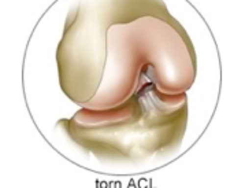 ACL Reconstruction Basics Treatment By Knee Specialist Los Angeles