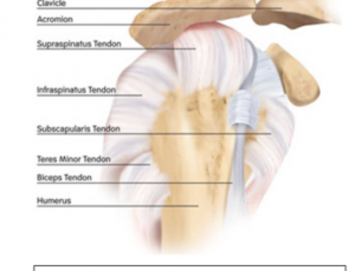 What to Expect During a Rotator Cuff Tendon Reconstruction Surgery