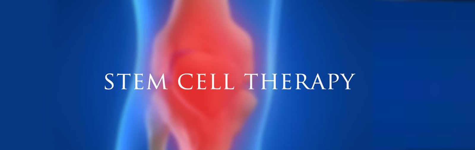 The Magic Power Of Stem Cells La S 1 Orthopedic Surgeon